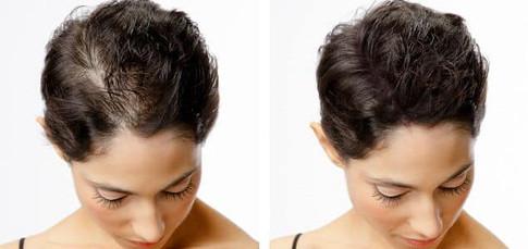 Women's Hair Loss and Scalp Micropigmentation Treatments
