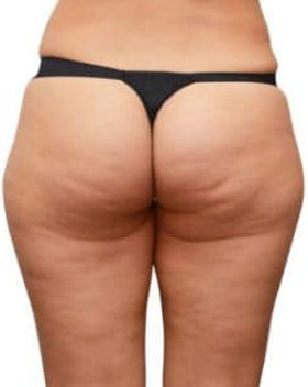 FAT-DISSOLVING-4.jpg
