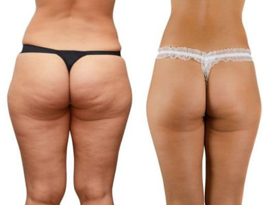 FAT DISSOLVING INJECTIONS Fat Dissolve Mesotherapy