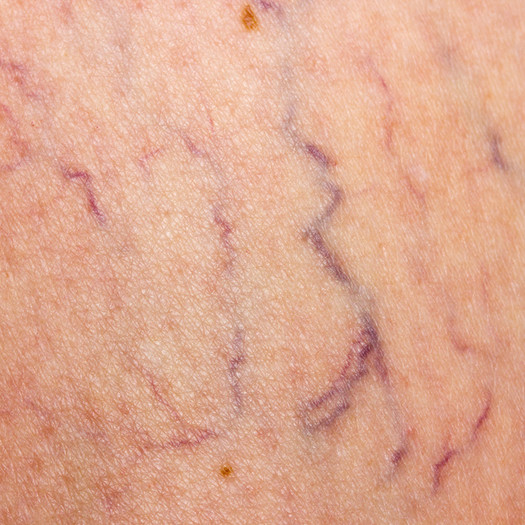 Thread Vein (Spider Vein) Removal