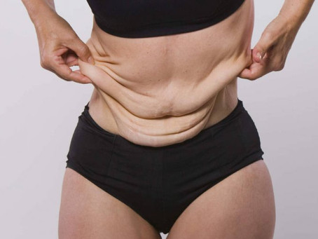 REAL PEOPLE - REAL RESULTS: Tackling Loose Skin After Weight Loss.