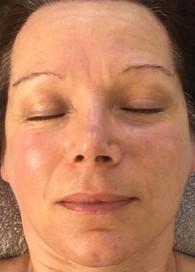 Organic Radiance Facial - After