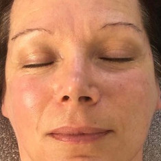 After Skin Radiance 'So Pure' Organic Facial