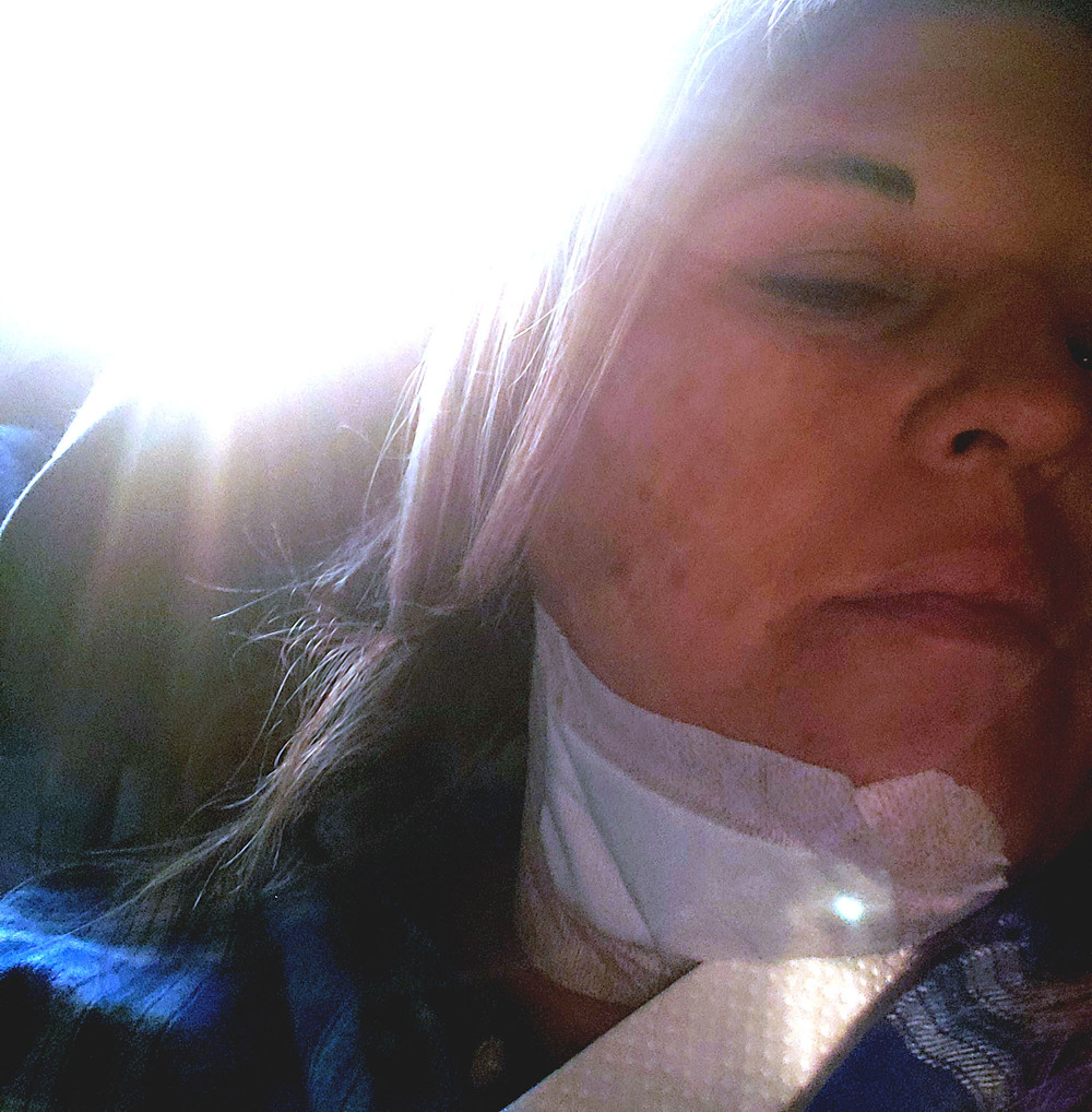 Sandra Mitchell Blog / Bandaged Up After Surgery