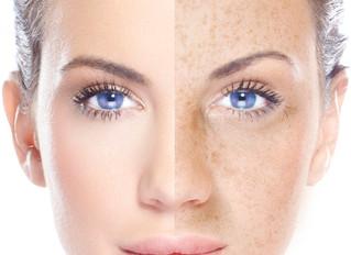 Pigmentflecken im Gesicht? Mela White - the power of medical beauty