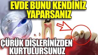 Diş Çürüğü Nasıl Geçer? Diş Hekimleri Bunun Bilinmesini İstemez