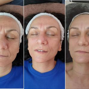 Αντιρυτιδική-συσφικτική θεραπεία μεσοθεραπεία 5 συνδερίες