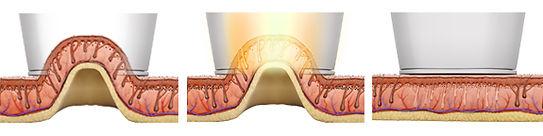laser hair removal vacuum tip