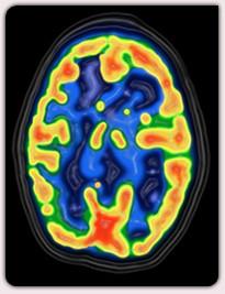 cerveau irm hypnose