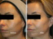 venus-versa-and-viva-before-and-after-59