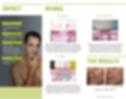 How TriBella works, anti-aging, experience the results after 1 TriBella Treatment