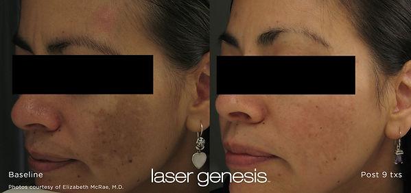 lasergenesis.jpg