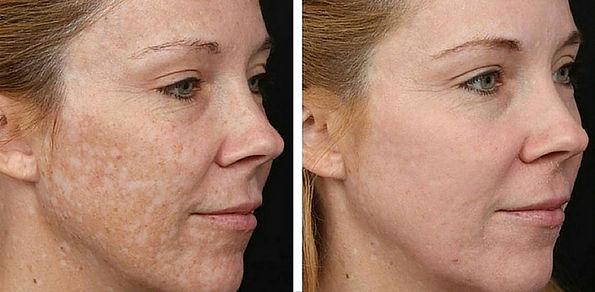 hyperpigmentation-before-after-venus-ver