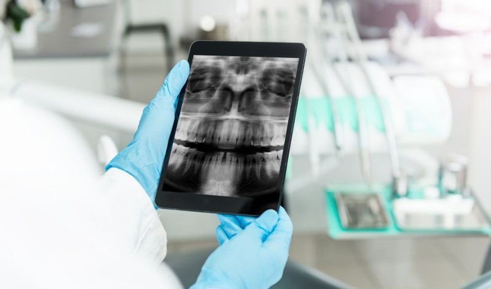 telerradiologia-e-radiologia-odontologic