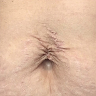 Belly before Fibroblast.jpg