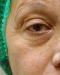 Augenpartie Bsp 2 vorher