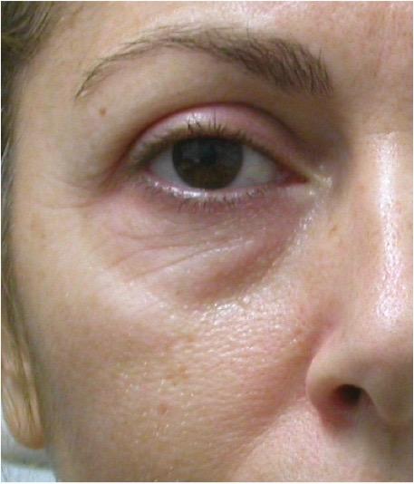 Augenpartie Bsp 1 vorher