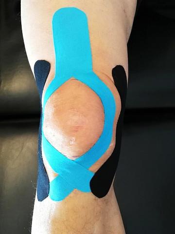 Arthrose Knie Anlage