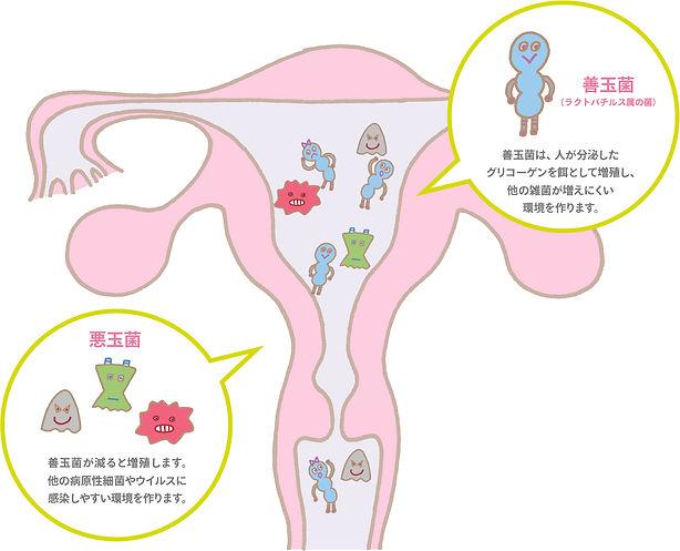 子宮内フローラ2