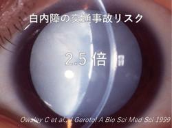 白内障は人工眼内レンズで改善される