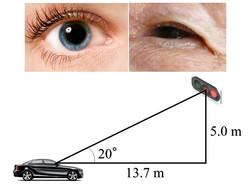 眼瞼下垂は信号の見落としにつながる