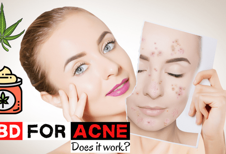 CBD for Acne – Does it Work?