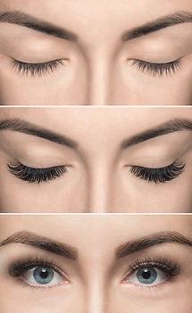 Eyelash removal procedure before and aft