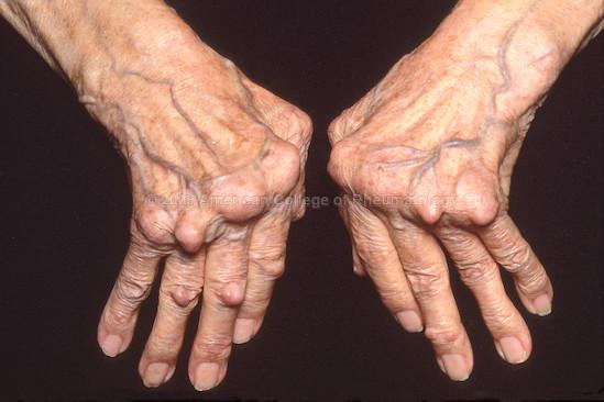 Affinity Chiropractic Minnetonka Chiropractor, Effects of Autoimmunity