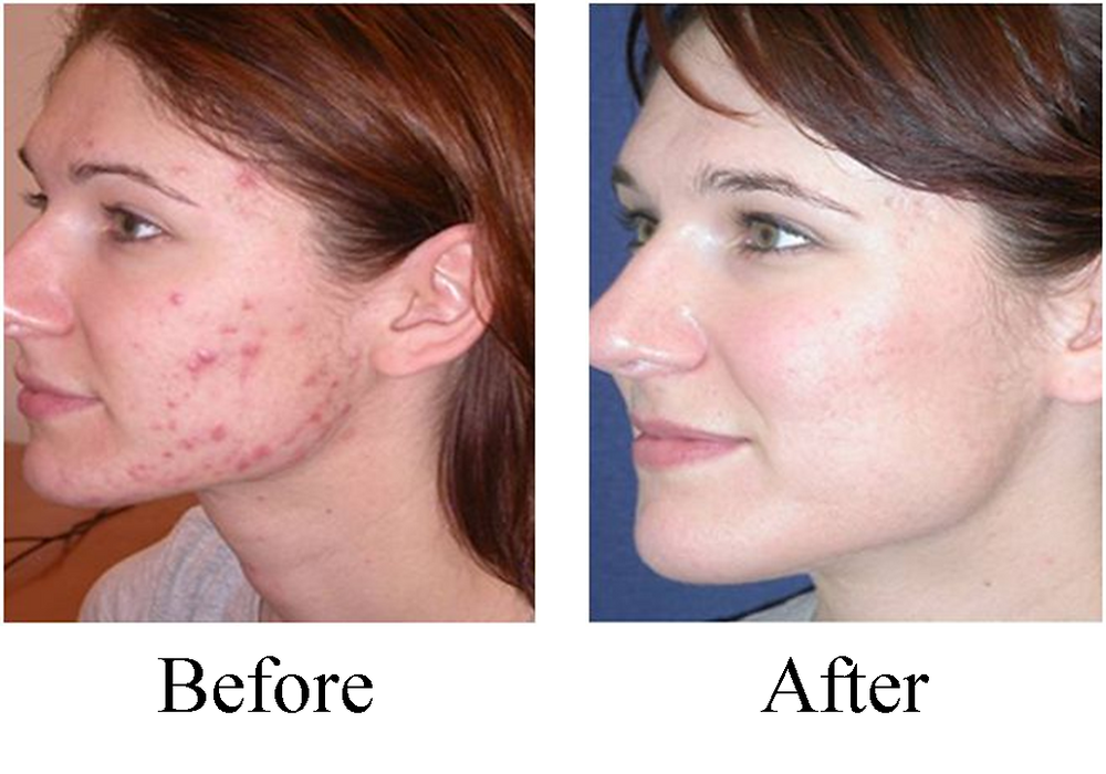 Minnetonka Chiropractor, Affinity Chiropractic treats acne and other skin conditions.