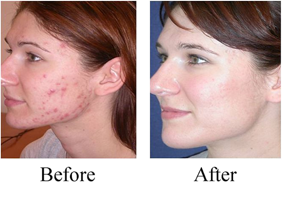Find out how to treat acne and other skin conditions with chiropractic care at Affinity Chiropractic in Minnetonka, Minnesota.