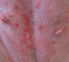 dermatite em abdômen de cão