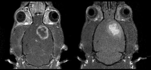 DCE MRI