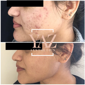 Collagen induction therapy/Micro-needling