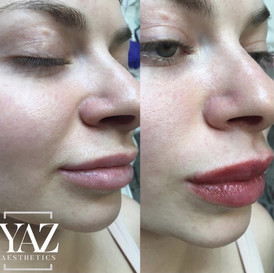 Russian lip filler