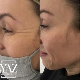 Anti-wrinkle treatment