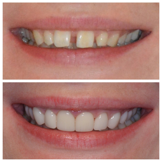 Invisalign and Veneers