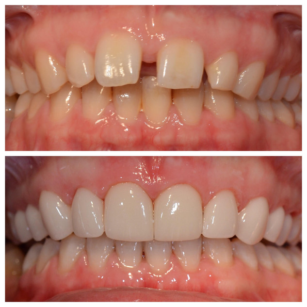 Invisalign and Dental Veneers