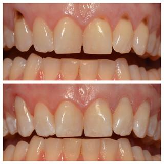 dark teeth bonded.jpg