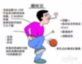 急性阑尾炎图.png