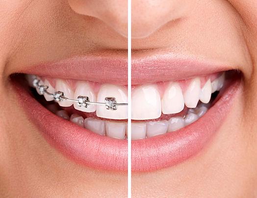 Ankara Dis Hekimi Ortodonti