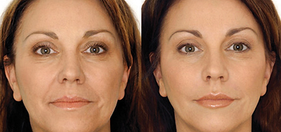 CosmeticAcupBeforeAfter.png