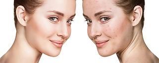 acne-facials-1200x480.jpeg