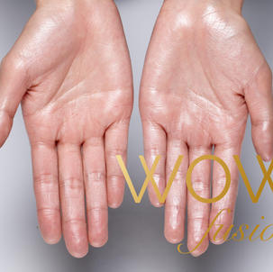 WOW for PALM SWEATING - £170