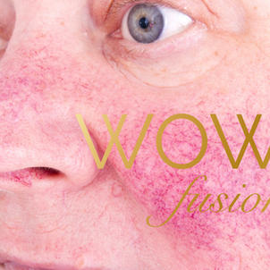 WOW for ROSACEA - £349