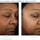 Thumbnail: Obagi Nu-Derm Fx™ System