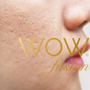 WOW for ACNE SCARRING - £170