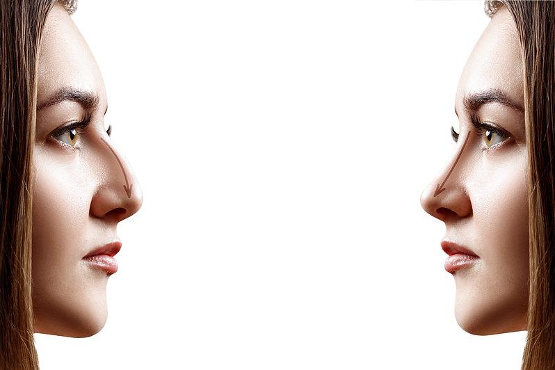 noserhinoplastycardiff.jpg