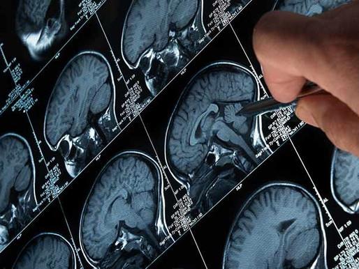 Lunes 21 de junio es el Día Mundial de la Concientización de la Acromegalia
