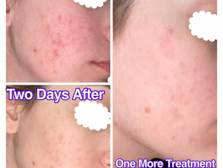 Post-Acne scars!