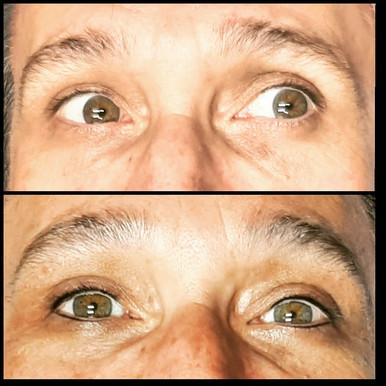 Male eye enhancement